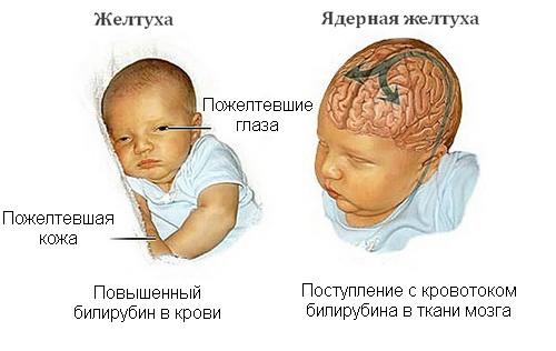 Как снизить билирубин в домашних условиях новорожденному 451