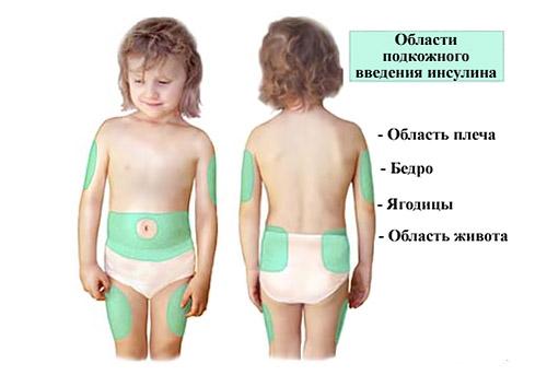 Сахарный диабет у детей: симптомы, лечение, профилактика, осложнения