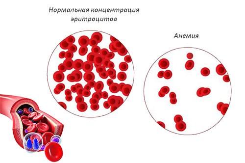 Признаки анемии у ребёнка