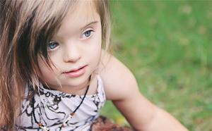 Особенности детей с синдромом Дауна