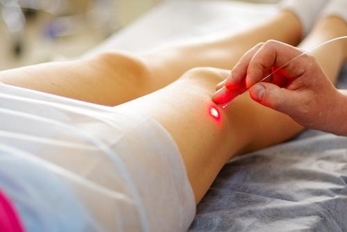 Лечение варикоза у беременных