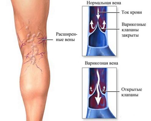 Врач мясников о венах на ногах видео