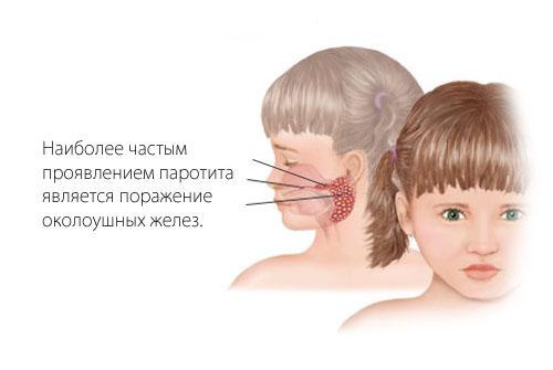 Симптомы свинки у детей