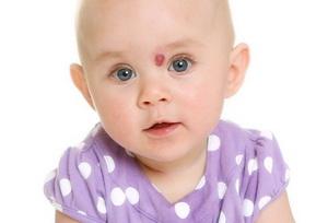 Методы лечения гемангиомы у детей