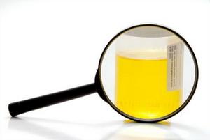 Дизметаболические нефропатии у детей: причины, диагностика, лечение