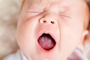 Кандидозный стоматит у детей: причины, симптомы, лечение