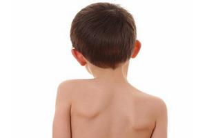 Сколиоз у детей: причины, признаки, лечение и профилактика