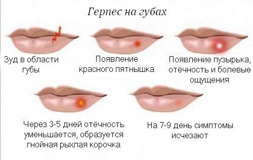 Вирус герпеса симптомы фото 417-345
