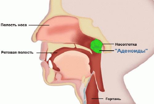 Аденоиды у детей лечение антибиотиком