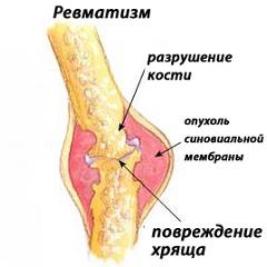 Симптомы ревматизма у ребенка