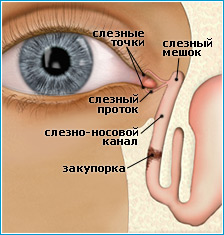 Закисание глаз при дакриоцистите