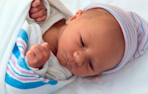 Лечение гидроцефалии у новорожденных