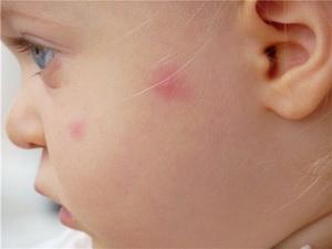 как лечить глистов у детей до 3