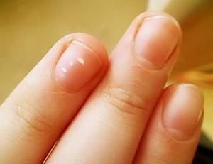 У ребенка появились белые пятна на ногтях