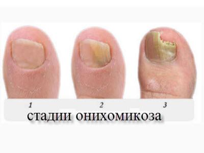 Могут ли от грибка чернеть ногти