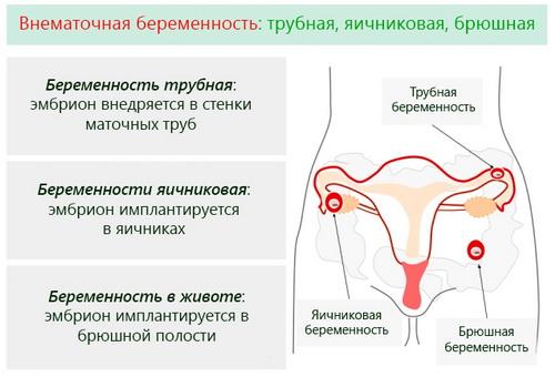 Можно ли сохранить ребёнка при внематочной беременности