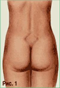 Естественные роды: размеры таза, противопоказания, подготовка, анестезия