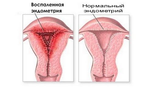 Лечение послеродового эндометрита