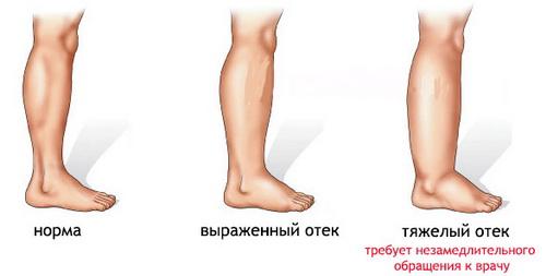 Во время беременности сильно отекают ноги