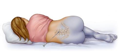 Анестезия при кесаревом сечении: общая, эпидуральная, спинальная
