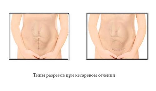 Виды кесарева в в зависимости от разреза