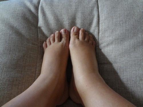 Отеки ног после кесарева сечения