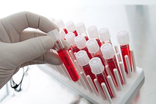 Анализ крови на хромосомные патологии плода