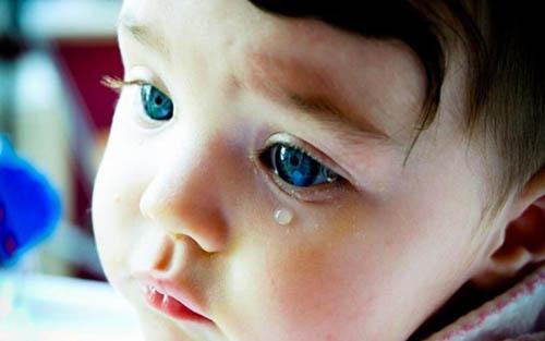 Кератит у детей: что это такое, симптомы, лечение, профилактика