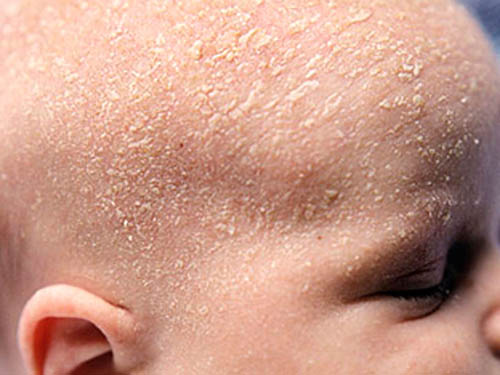 Ребенок покраснение шелушение кожи