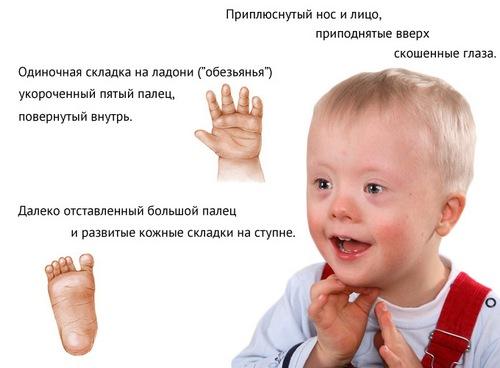 Симптомы синдрома Дауна