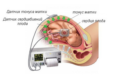 Третий скрининг при беременности: сроки проведения, что показывает, нормы