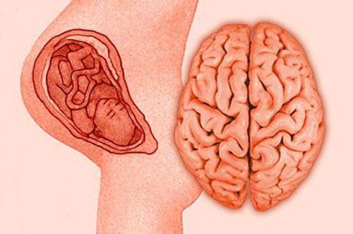 Диагностика олигофрении