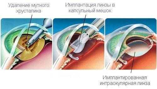 Лечение катаракты у детей