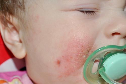 Симптомы стрептодермии у ребёнка