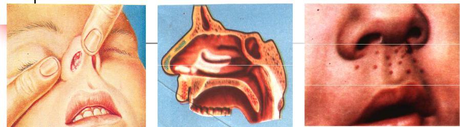 Дифтерия носа