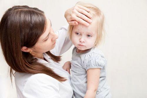 Мононуклеоз у детей: симптомы и признаки, формы, лечение, последствия