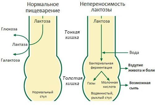 Признаки непереносимости лактозы