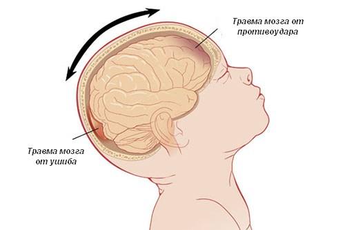 Признаки сотрясения мозга у ребенка до 1