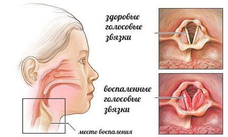 голосовые связки здоровые и воспаленные