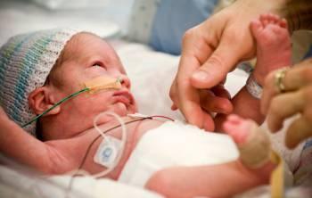 недоношенный ребенок с датчиками и трубками
