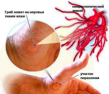 Лечение розового лишая у ребенка