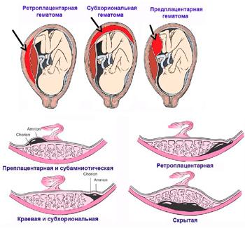 состояния отслойки плаценты