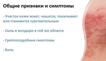 признаки и симптомы болезни