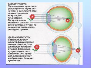 миопия и гиперметропия
