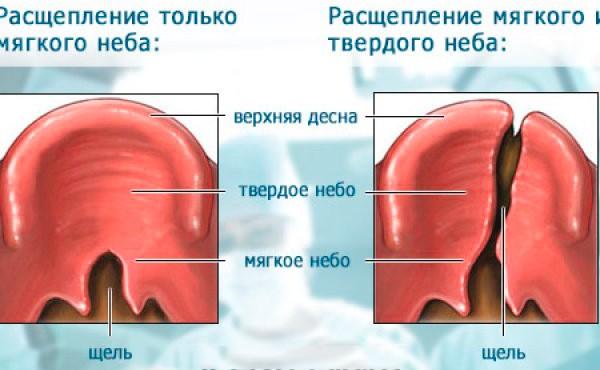 характеристика заболевания