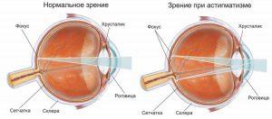 астигматизм и нормальное зрение