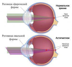 зрение при заболевании астигматизм