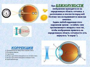 как осуществляется коррекция зрения