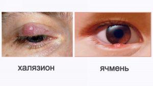 отличия заболеваний