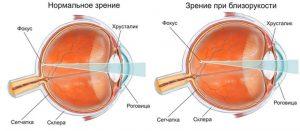 сравнение нормального зрения и при близорукости